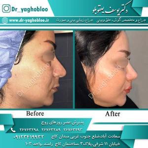 nose surgery (361)