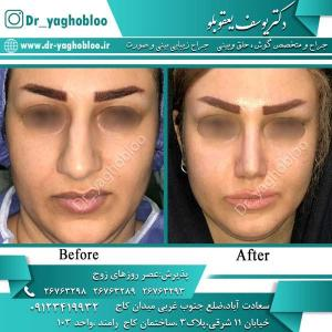 nose surgery (364)