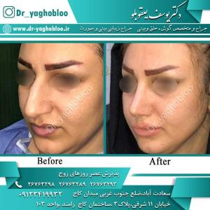 nose surgery (365)