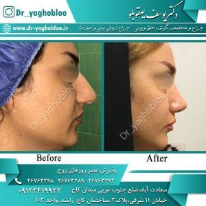 nose surgery (366)