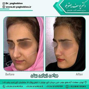 nose surgery (377)