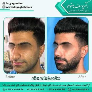nose surgery (381)