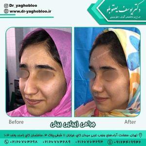 nose surgery (386)