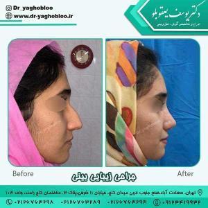nose surgery (387)