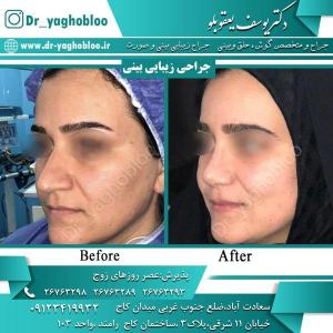 nose surgery (4)