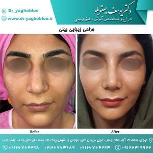nose surgery (41)