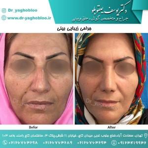 nose surgery (44)