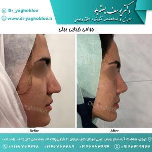 nose surgery (48)