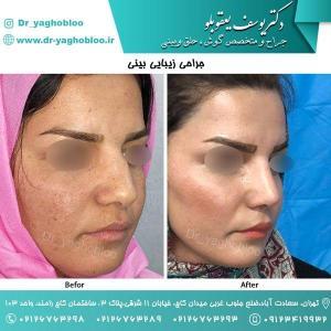 nose surgery (51)