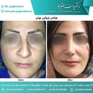 nose surgery (55) (1)