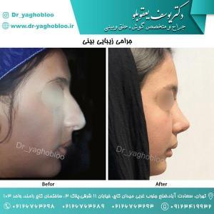 nose surgery (60) (1) (1)