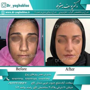 nose surgery (63)