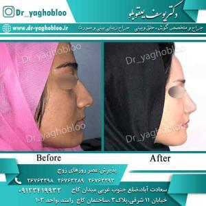 nose surgery (65)