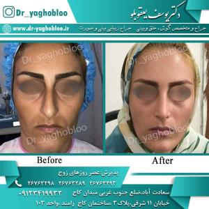 nose surgery (66) (1)