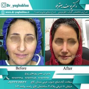 nose surgery (73) (1)