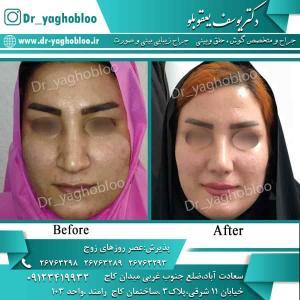 nose surgery (76)