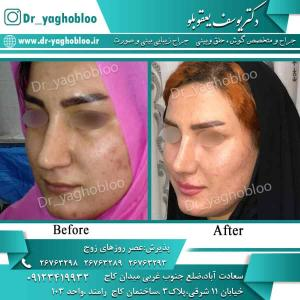 nose surgery (77) (1)
