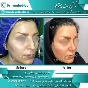 nose surgery (80)