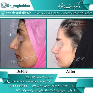 nose surgery (88)