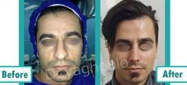 جراحی بینی آقایان