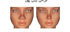 جراحی بینی پهن