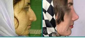 جراحی زیبایی بینی در تهران