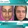 جدیدترین روش جراحی بینی