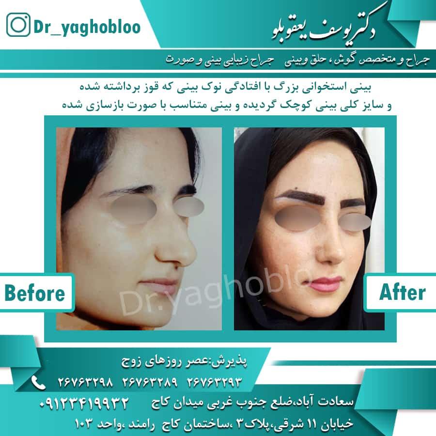 جراحی بینی تهران