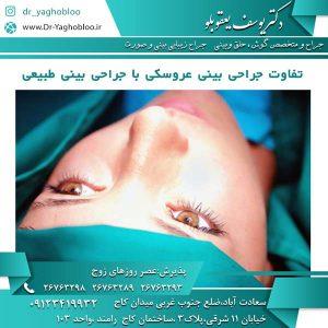 تفاوت جراحی بینی عروسکی با جراحی بینی طبیعی