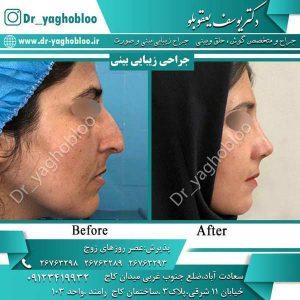 جراحی بینی غضروفی