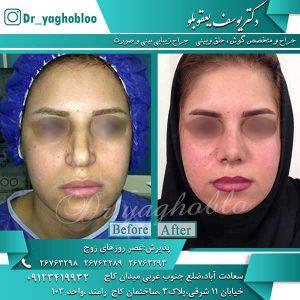 تفاوت جراحی بینی در آقایان و بانوان