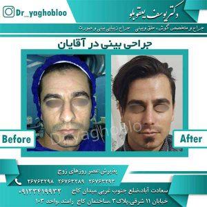 جراحی بینی در آقایان