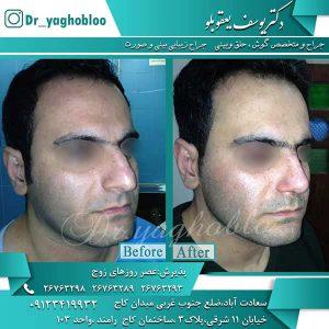 جراحی زیبایی بینی مردان