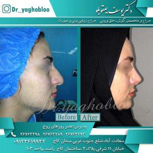 زیباترین عمل جراحی بینی