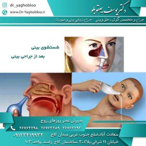 شستشوی بینی بعد از جراحی بینی