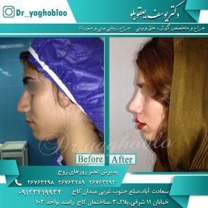 مراقبت های قبل و بعد ازجراحی بینی