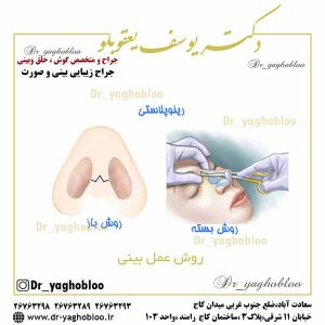 روش عمل بینی