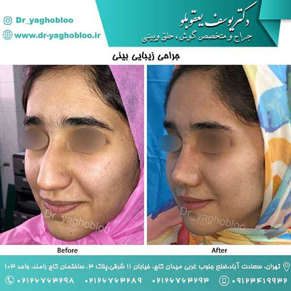 جراحی بینی زنان