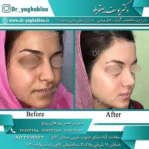 جراحی نوک بینی