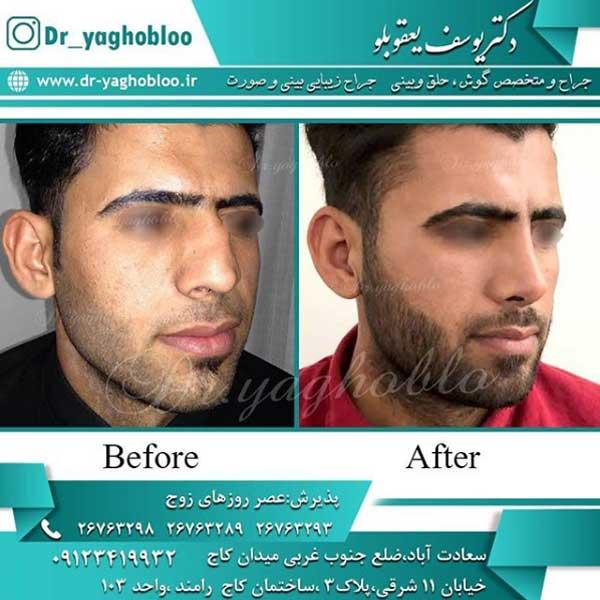 عمل زیبایی بینی مردان