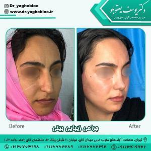 جراحی بینی در تهران 12