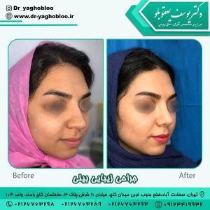 جراحی بینی در تهران 8 (1)