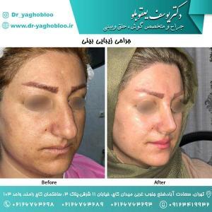 nose surgery (133)