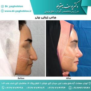 nose surgery (134)