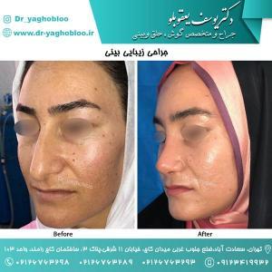 nose surgery (136)