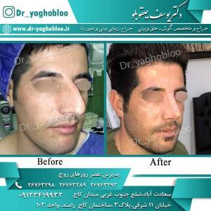 nose surgery (100)