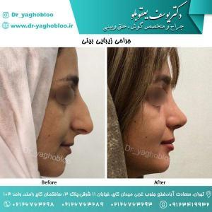 nose surgery (105)