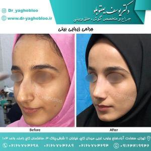 nose surgery (106)