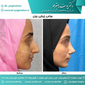 nose surgery (107) (1)