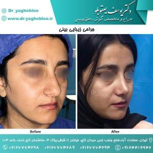nose surgery (108)